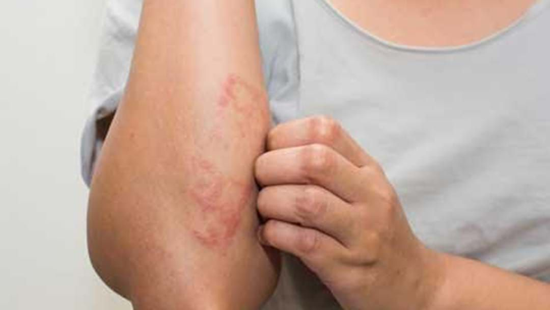 Article heading image for Cannabis Cream Could Offer 'Breakthrough' Eczema Treatment