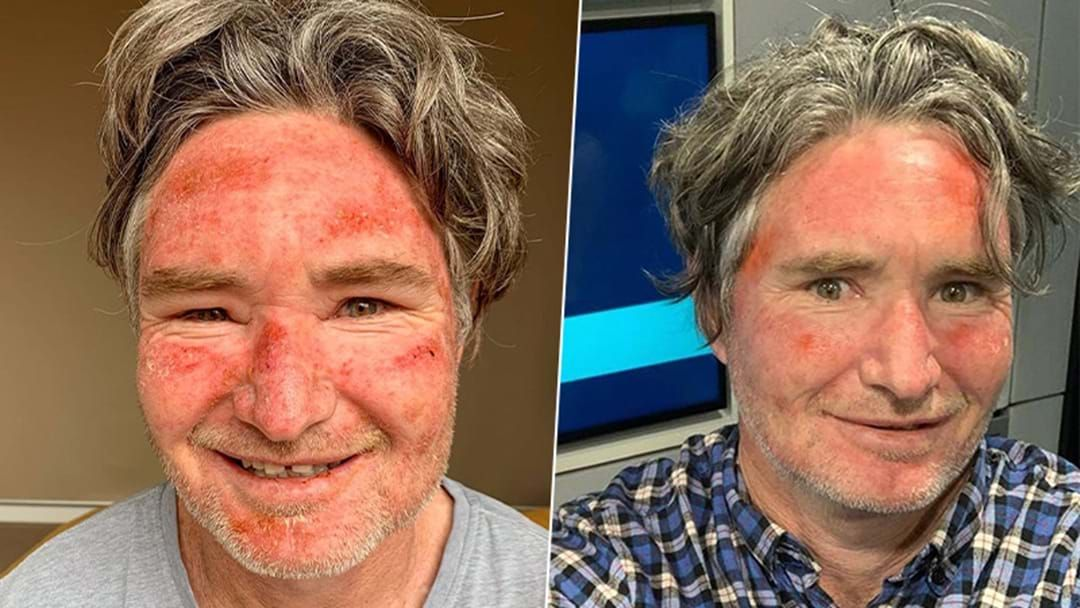 Article heading image for Hughesy Confirms What Beauty Treatment Accidentally Left Him With A Burnt Face