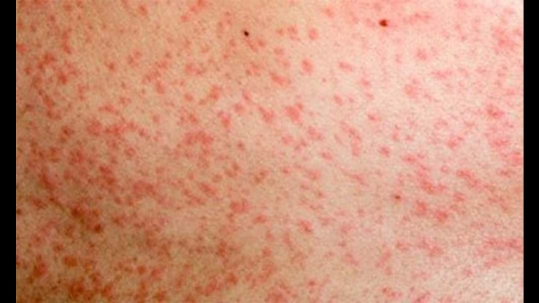 Article heading image for New Measles Warning Issued After Two Babies Diagnosed In Sydney