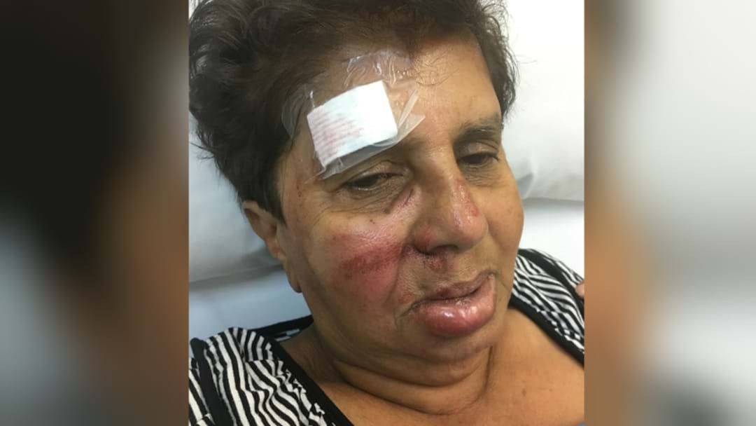 Article heading image for Teenage Thugs Push Elderly Woman Off Scooter At Singleton