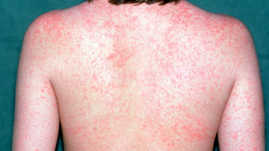 Article heading image for Check Your Vaccinations! There's Been ANOTHER Case Of Measles In NSW
