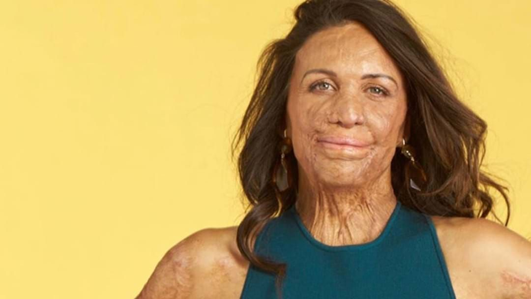 Article heading image for We Speak To Turia Pitt About How To Stay Happy & Grateful In 2020
