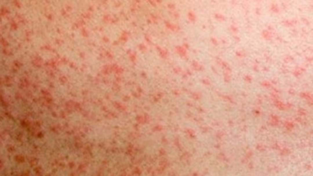 Article heading image for New Measles Alert For Country NSW