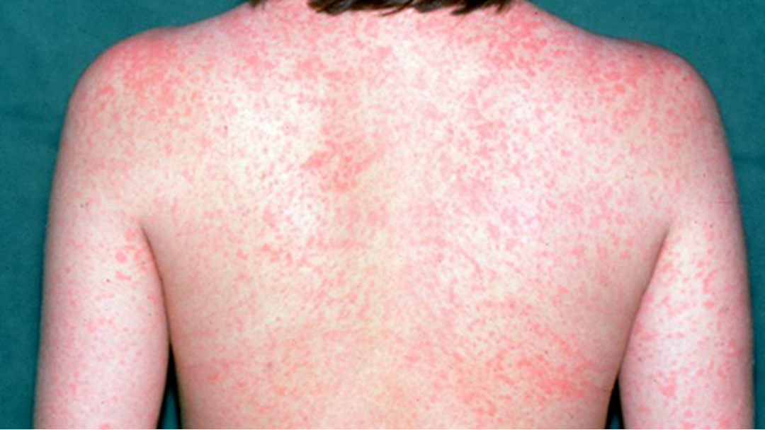 Article heading image for Warning After Measles Found In Victoria