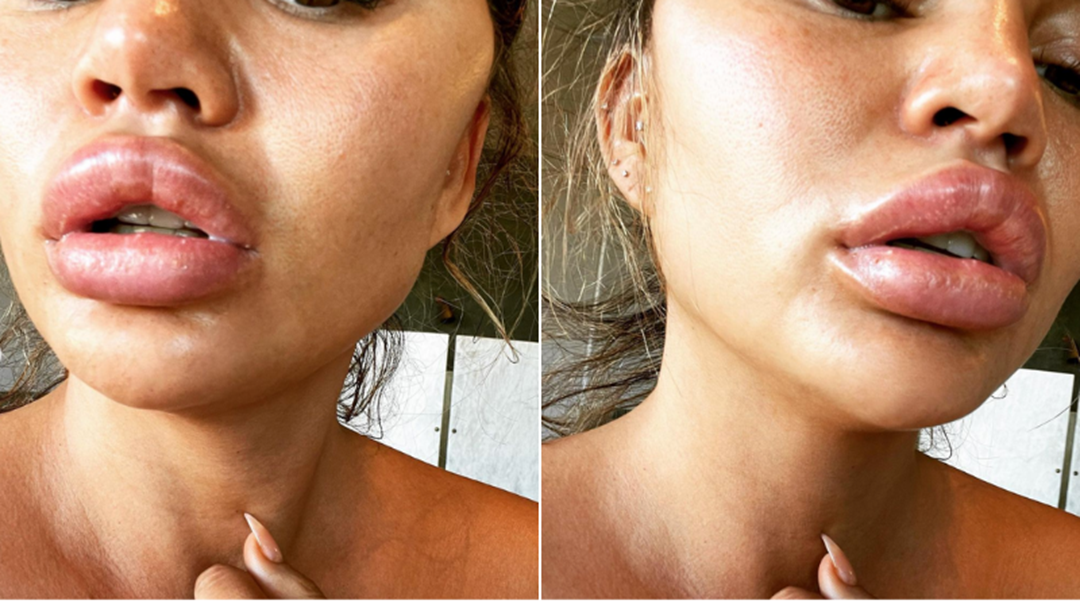 "Article heading image for Chrissy Teigen's Lips Have Blown Up The Size Of A House From The Skin Of A ""Suspicious Orange"""